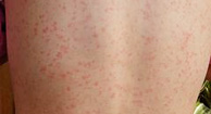 Good question Rash with fever in adults opinion you