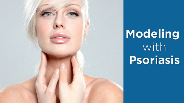 Woman Modeling with Psoriasis