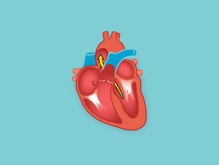 Heart Pictures Diagram Anatomy Body Maps