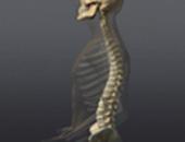 How Ankylosing Spondylitis Can Restrict Movement