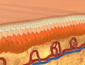 How Psoriasis Plaques Form
