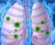COPD and Pneumonia: Understanding Your Risk