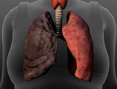 Surgical Options for Severe COPD