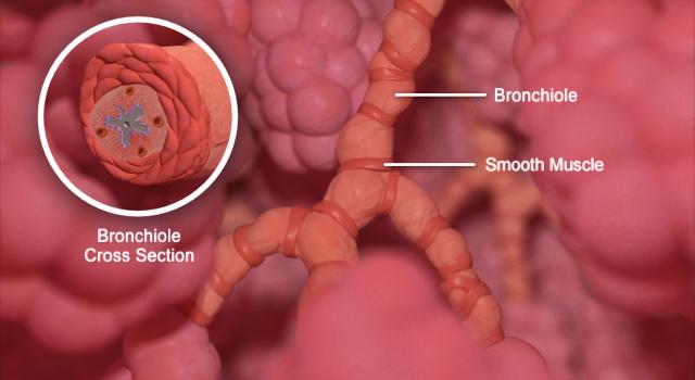 Airway Inflammation