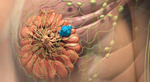 Why Cancer Spreads into the Lymphatic System