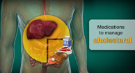 Medications to Manage Cholesterol