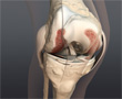 A Severely Arthritic Knee