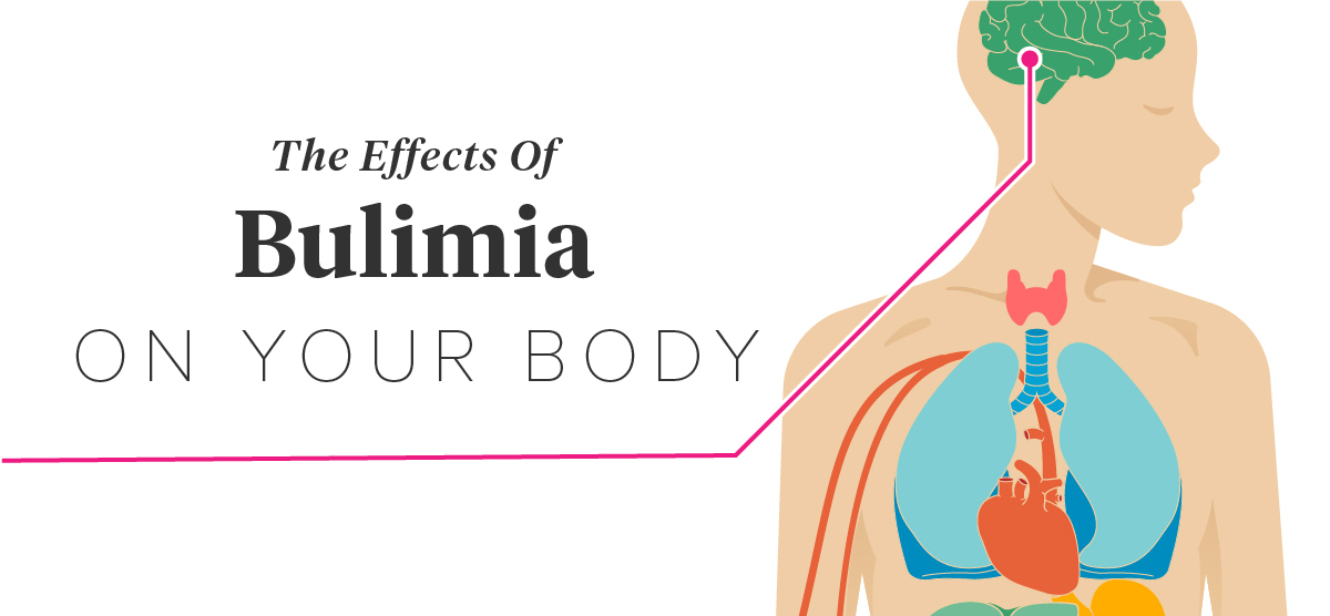 effects of bulimia Bulimia robs the body of nutrients and leaves individuals with health problems that last throughout their life when young adults attempt to lose weight by the practice of eating and then purging their food, they have no idea of the severe harm they're doing to.