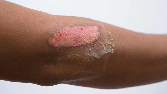 how to treat chemical burns