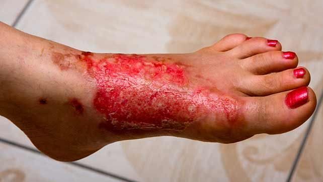 burns: types, symptoms, and treatments, Skeleton