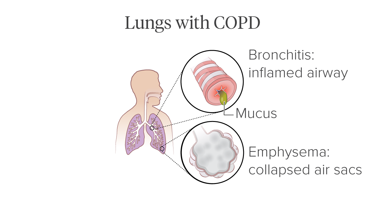 diseased lung illustration