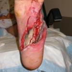 diabetic-foot-damage
