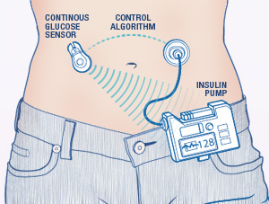 Image Result For Artificial Pancreas For Type  Diabetes
