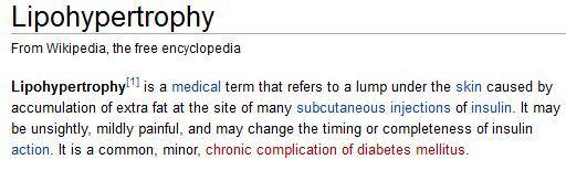 Lipohypertrophy