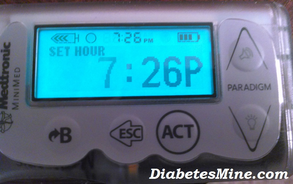 Insulin Pump Time Change