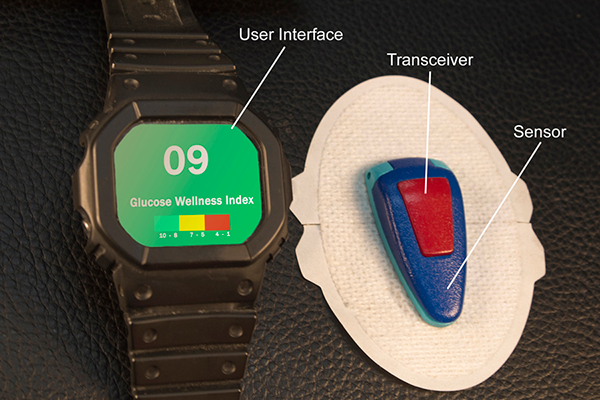 Glucovation Sensor and Data Watch