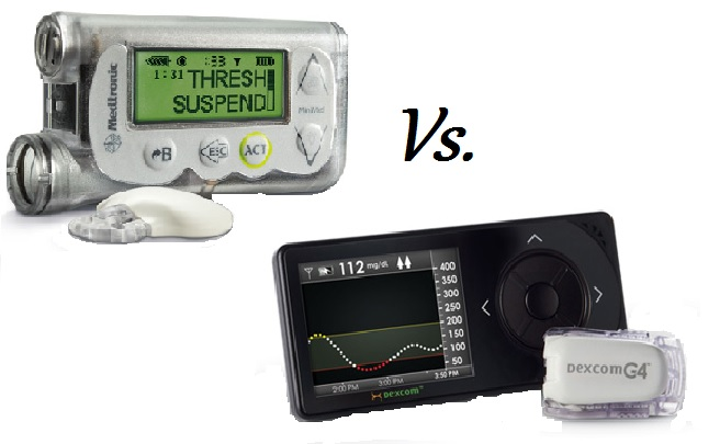 MedT 530G Enlite vs Dexcom G4