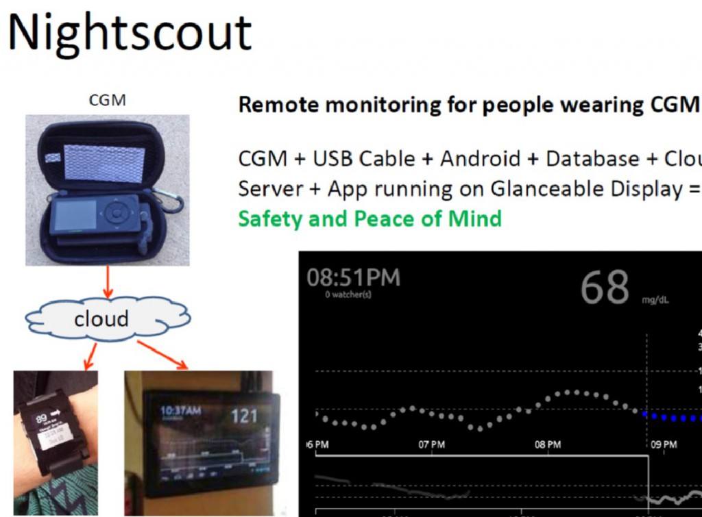 Nightscout CGM solution
