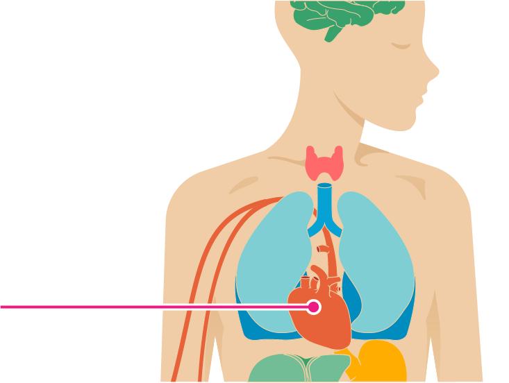 How Chronic Myeloid Leukemia Affects the Body