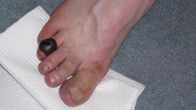 Red Bruise Inside Of Ring Finger Not Sore