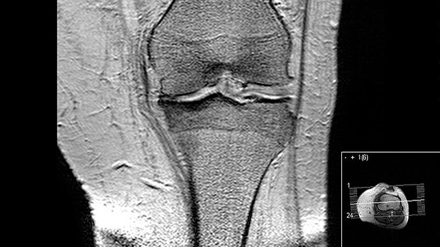 What Does Arthritis Look Like On An Mri