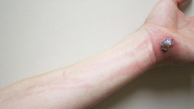 cellulitis arm