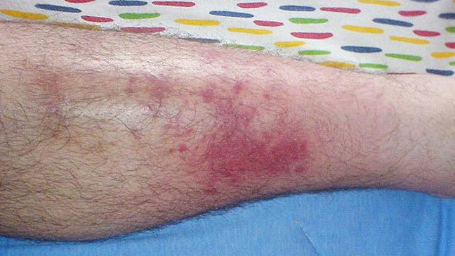 the causes symptoms and treatment of cellulitis Cellulitis is a non-contagious bacterial skin infection that affects the deeper layer of the skin along with subcutaneous tissues under the skin\n slideshow 7739856 by lazoithelife.