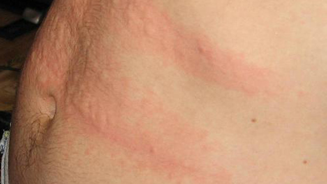 Hives Causes Risks Prevention And Pictures