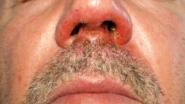impetigo: causes, symptoms, diagnosis & pictures, Cephalic Vein