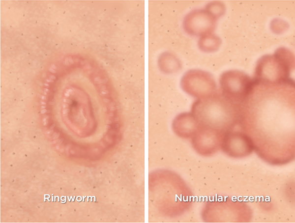 nummular eczema: causes, symptoms, and diagnosis, Skeleton