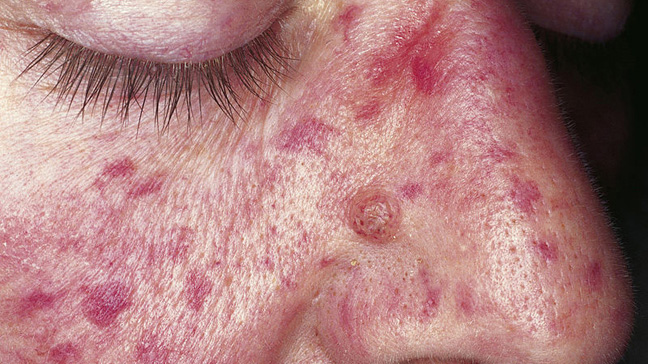 Nevus Araneus (Spider Nevus): Background, Pathophysiology ...