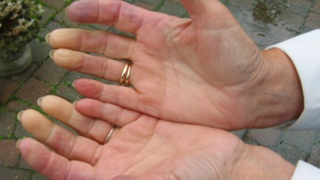 Image result for Systemic scleroderma