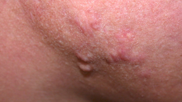 types of acne: pictures, treatments, and more, Cephalic Vein