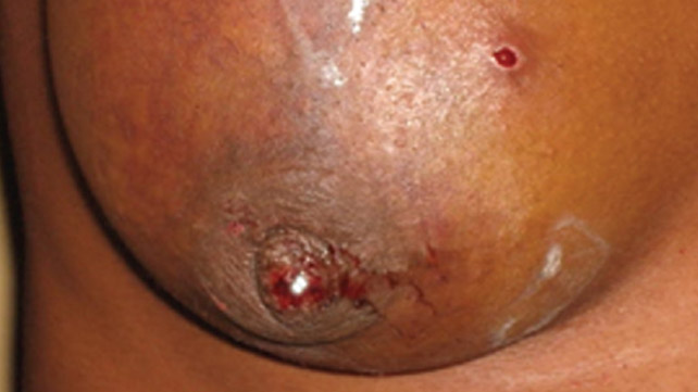 breast on Infected pimple