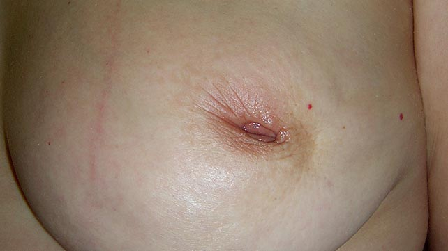 Black bump on breast