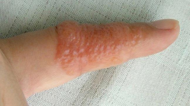 graphic condition pictures eczema eczema