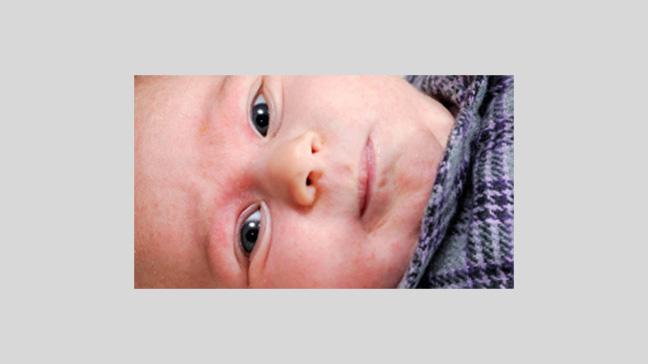 graphic condition pictures eczema eczema eczema