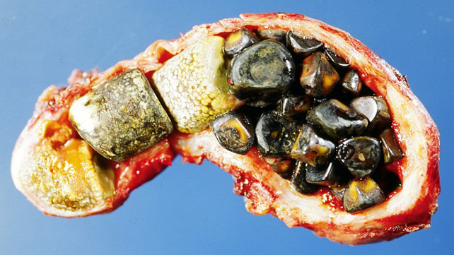 gallstones: causes, risks, diet, and more, Human Body