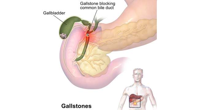 Gallstones Causes Risks Diet And More