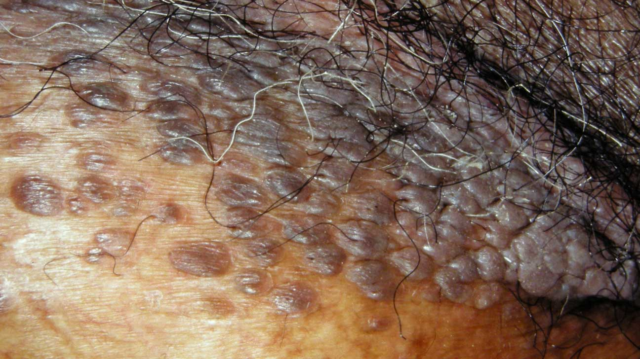 Black mole on genital area