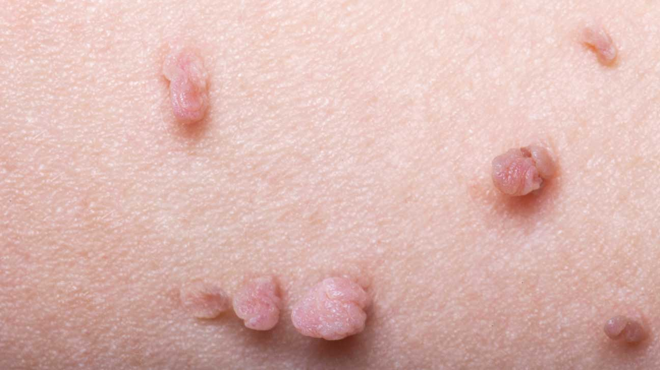 Genital Skin Tags Or Warts From Hpv Symptoms Removal And More