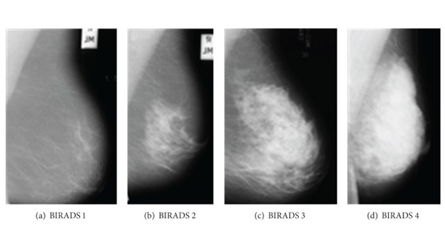 Mammogram Images: Understanding Your Results