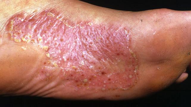 pustular psoriasis causes