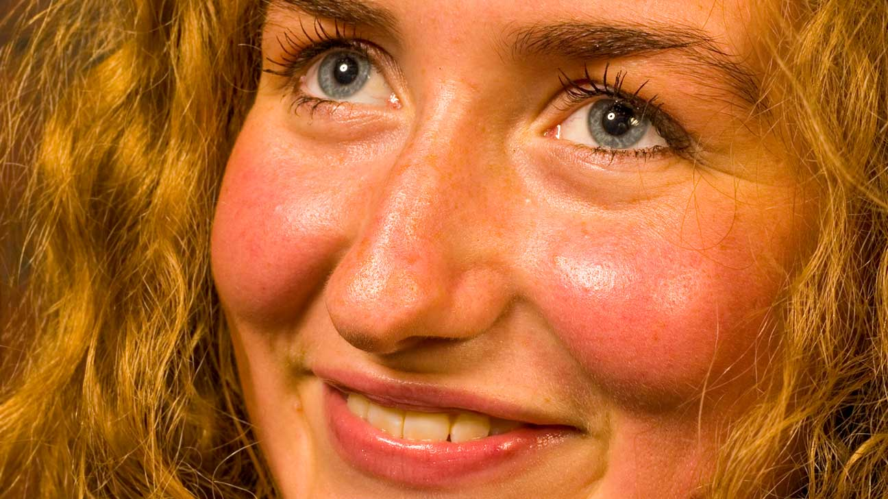 Natural ways to reduce redness in face