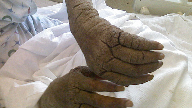 Scabies Bites Pictures Symptoms And Treatments