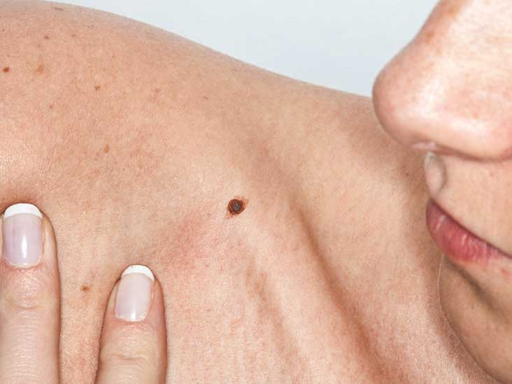 skin cancer pictures and facts: what you need to know, Skeleton