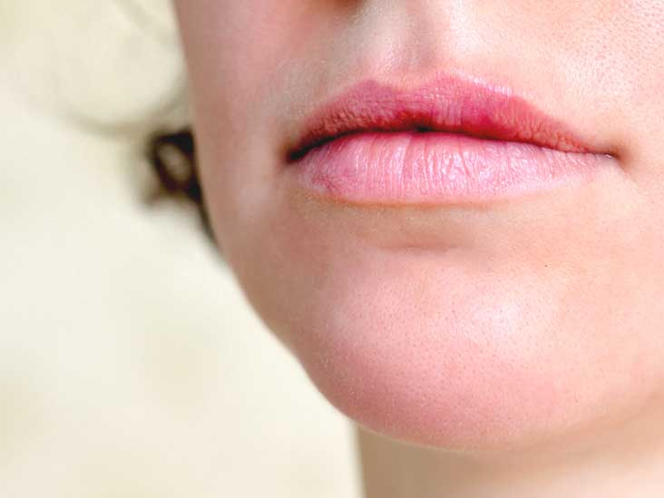 Skin Tags on Lips: Causes and Treatment