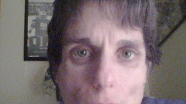 sunken eyes meaning - 642×361