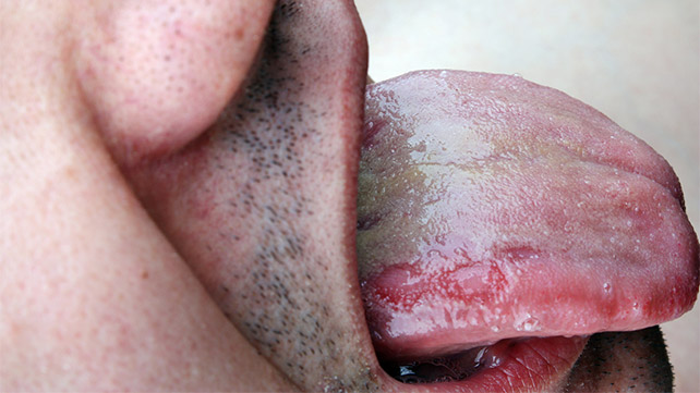 in Oral contagious thrush adults