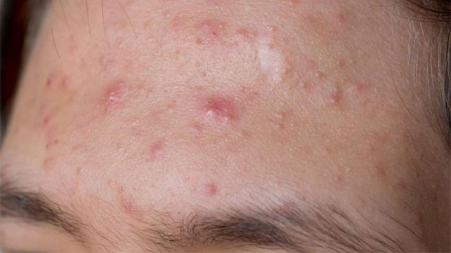 sebaceous cyst: causes, diagnosis, and treatment, Skeleton